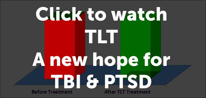 Laser Md Ptsd Amp Tbi Treatment With Tlt Transcranial