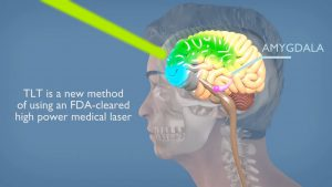 TLT Transcranial Laser Therapy, New Hope for PTSD & TBI
